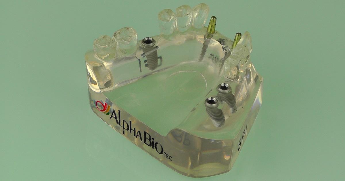 Alpha Bio Zahnimplantat