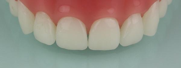 Zahn Prothese