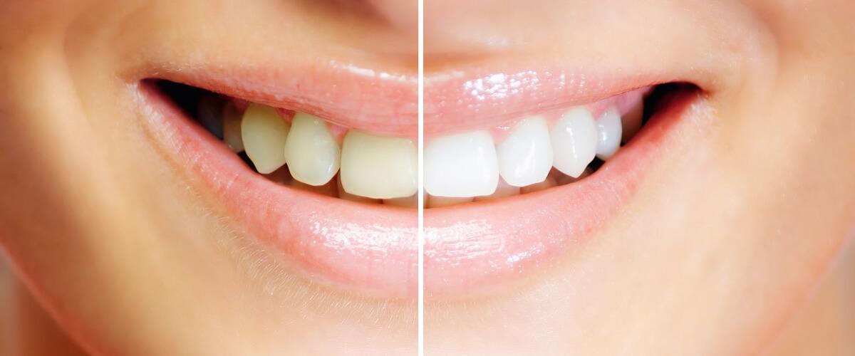Zahnaufhellung vorher und nacher