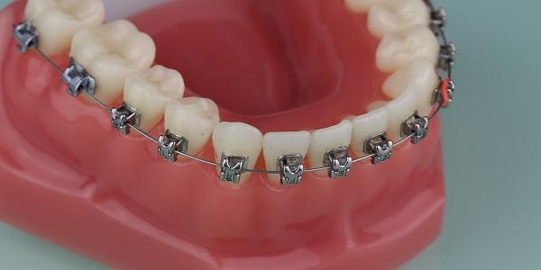 Zahnspange 1