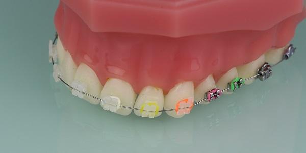 Zahnspange 2