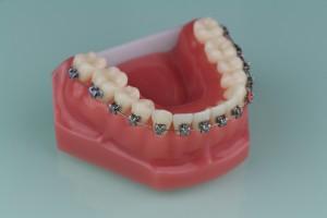 zahnspange-dentall4one